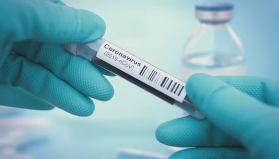 Le test PCR (Polymerase Chain Reaction) permet de détecter la présence du virus chez un individu (c)Istock